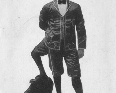 Francesco Lentini - Three-Legged Wonder of Sideshow History