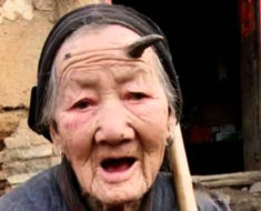 Human horns on 101-year-old Zhang Ruifang