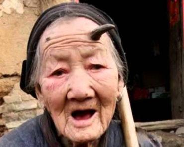 Human horns on 101-year-old Zhang Ruifang