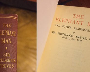 The Elephant Man and Other Reminiscences, by Sir Frederick Treves