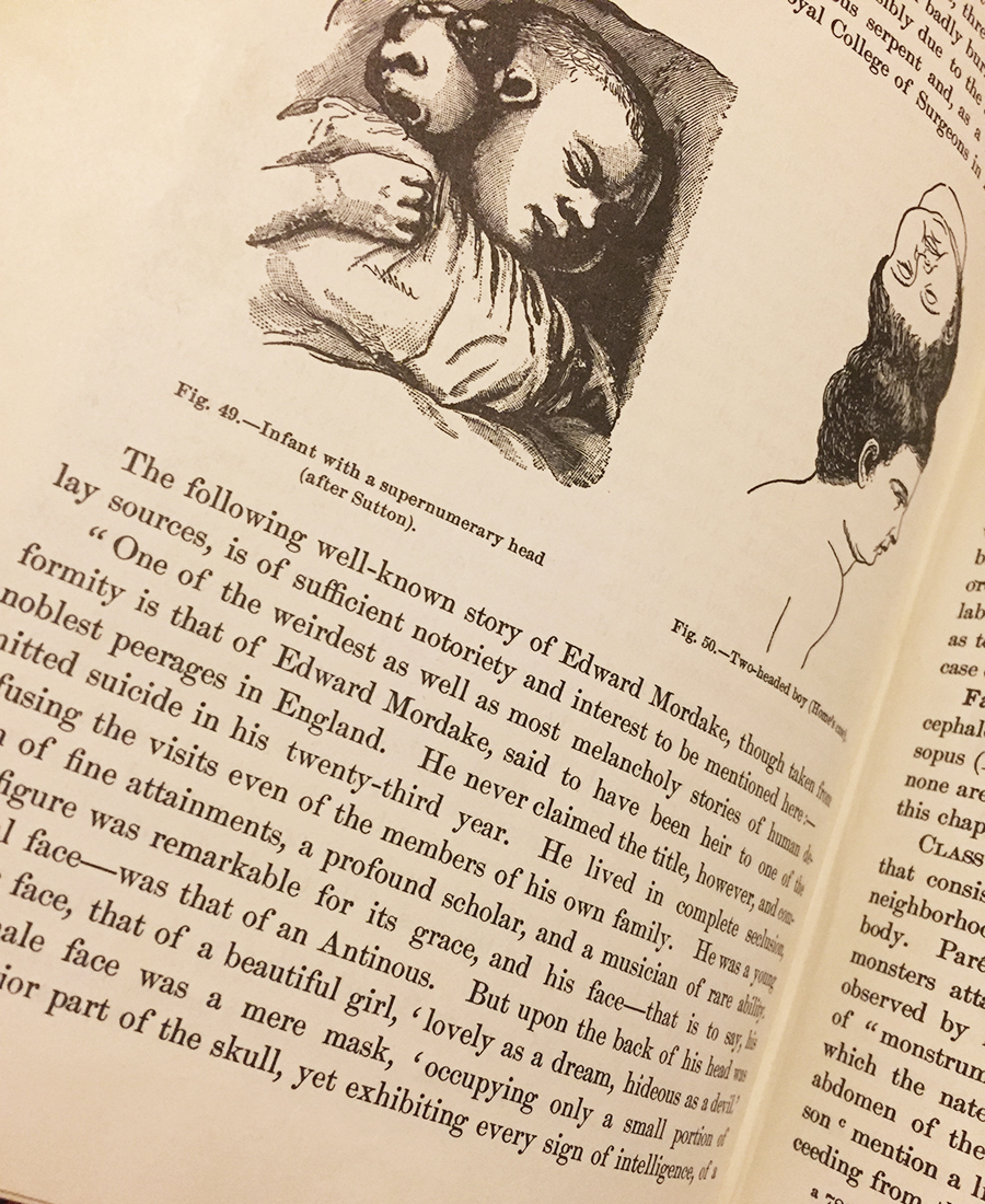 Edward Mordake in Anomalies and Curiosities of Medicine. Illustrations above depict others with extra heads.